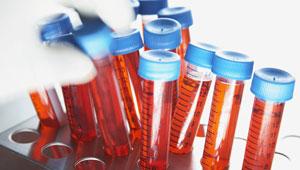 اختبار مفعول دواء جديد يبطء الزهايمر